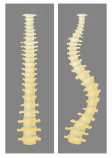 정상인과 척추측만증 환자의 차이