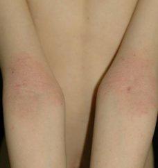 팔 접히는 부분의 아토피 피부염