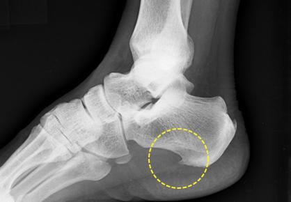 족저근막염 X선 영상: 발뒤꿈치뼈에 뼈조각이 자라남